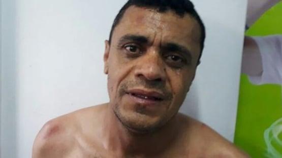 Kassio nega transferência de Adélio para hospital