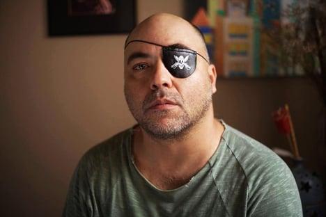 10 x 1 – Supremo manda SP indenizar fotógrafo baleado no olho pela PM
