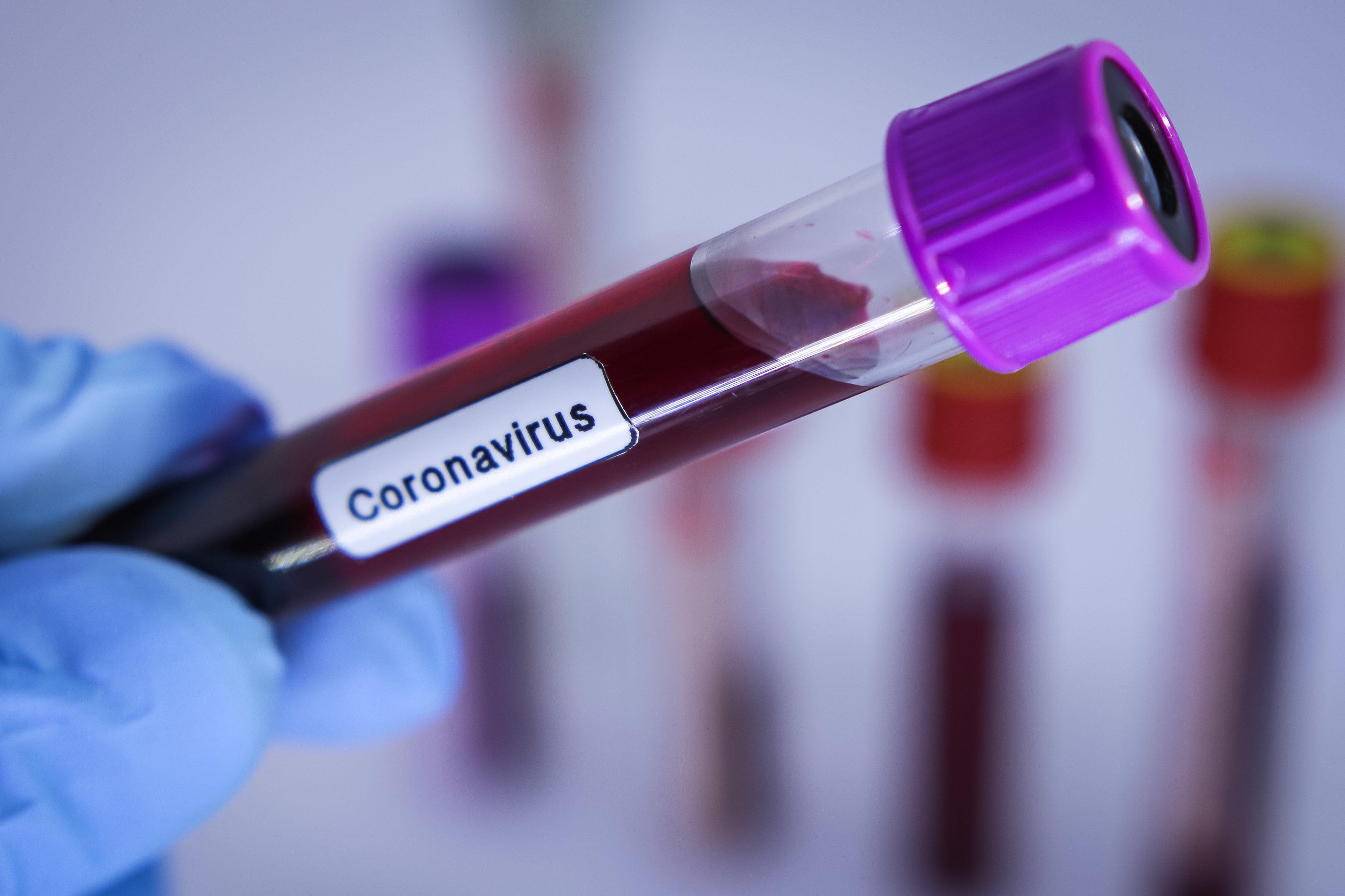 IMAGEM: Saúde informa que já realizou quase 154 mil testes para Covid-19