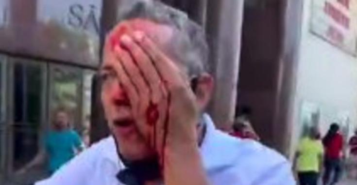 IMAGEM: Homem perde visão de um olho em ato contra Bolsonaro no Recife