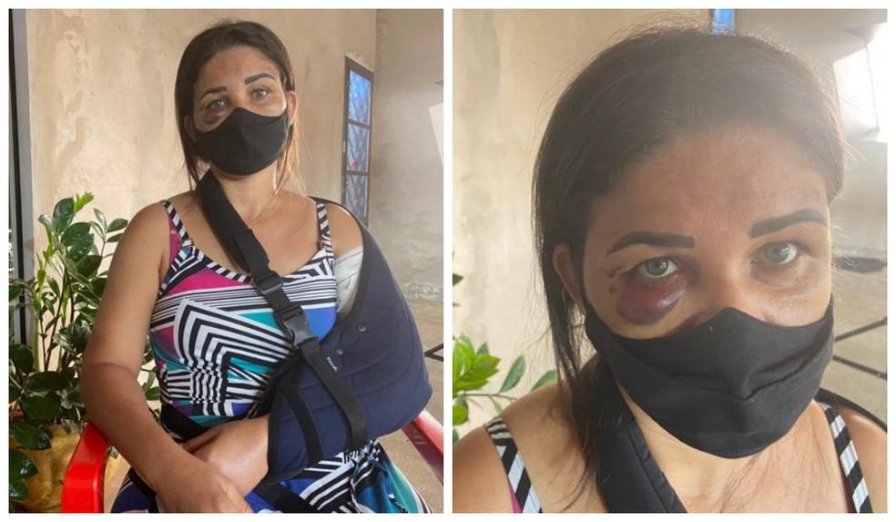 IMAGEM: Funcionária de padaria tem braço quebrado após pedir para cliente usar máscara